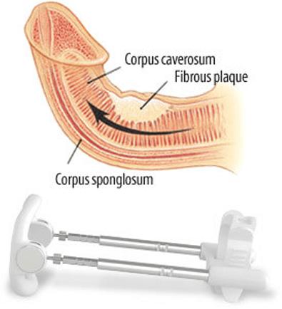 SizeGenetics Peyronies Edition
