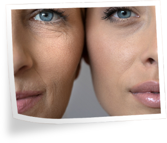 Before and After Benefits of Organixx Collagen