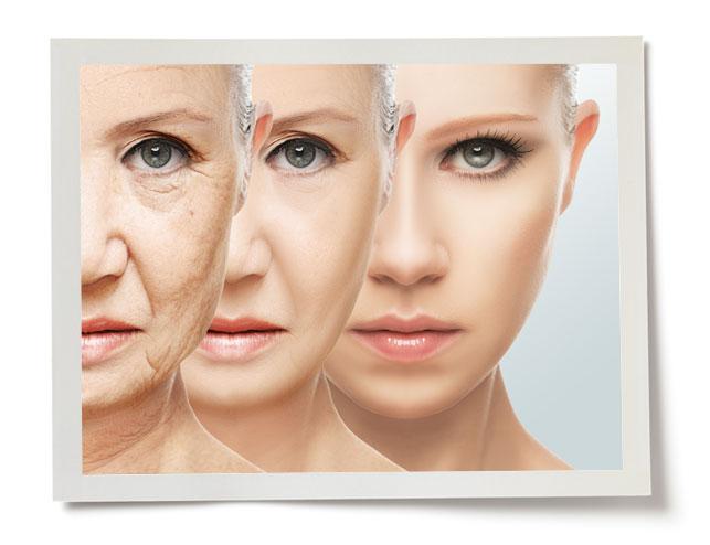 Collagen Loss in Skin