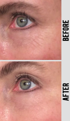 Instant Wrinkle Reducer Effects on reducing wrinkle in under a minute