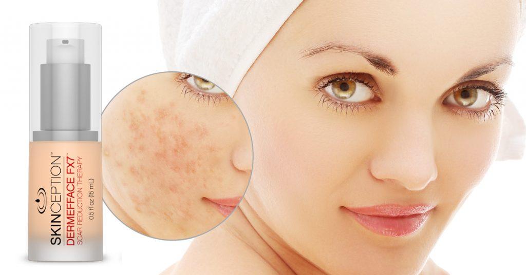 Dermefface FX7 Scar Reduction Cream