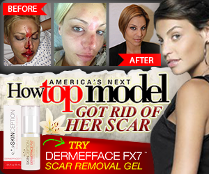 Dermefface FX7 scar reduction therapy