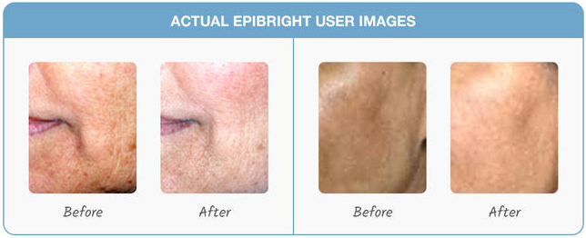 Epibright Before and After Results