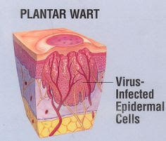 Warts disections